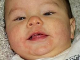 csecsemőkori ekcéma